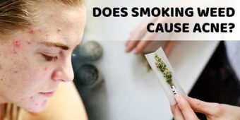 Does Smoking Weed Cause Acne